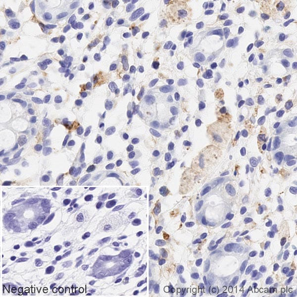 Immunohistochemistry (Formalin/PFA-fixed paraffin-embedded sections) - HRP Anti-Smad4 antibody [EP618Y] (ab195554)