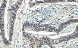 Immunohistochemistry (Formalin/PFA-fixed paraffin-embedded sections) - Anti-Rac1 antibody (ab195606)