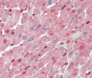 Immunohistochemistry (Formalin/PFA-fixed paraffin-embedded sections) - Anti-FABP4 antibody (ab195657)