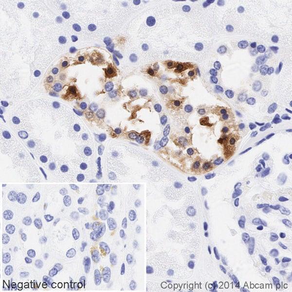 Immunohistochemistry (Formalin/PFA-fixed paraffin-embedded sections) - Anti-PKR (phospho T446) antibody [E120] (HRP) (ab195850)