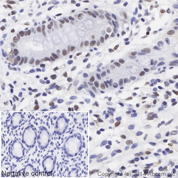Immunohistochemistry (Formalin/PFA-fixed paraffin-embedded sections) - Anti-HDAC2 antibody [Y461] (HRP) (ab195851)