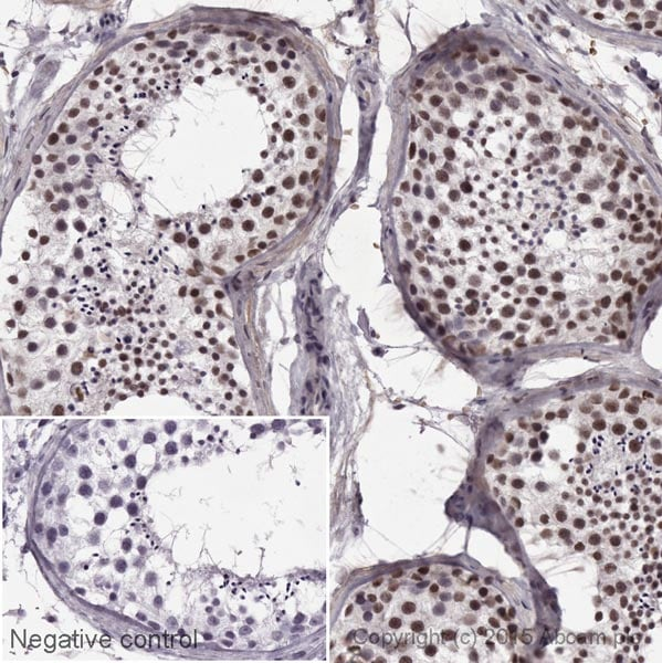 Immunohistochemistry (Formalin/PFA-fixed paraffin-embedded sections) - Anti-KDM1 / LSD1 antibody [EPR6825] - Nuclear Marker (HRP) (ab195897)
