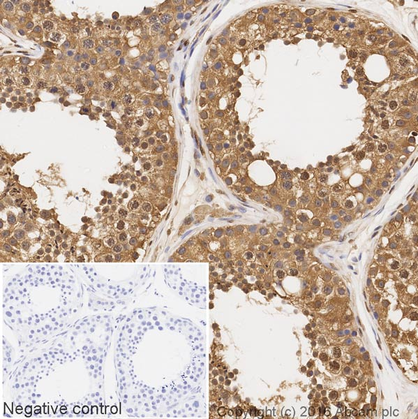 Immunohistochemistry (Formalin/PFA-fixed paraffin-embedded sections) - Anti-GAPDH antibody [EPR6256] - Loading Control (Biotin) (ab195904)