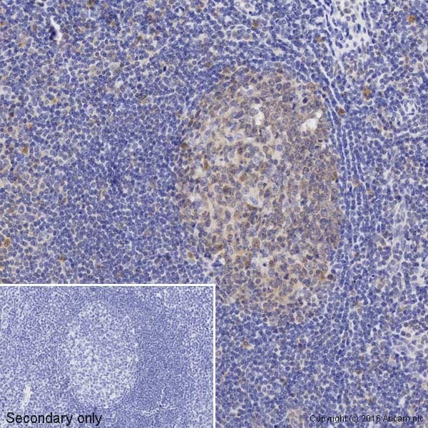 Immunohistochemistry (Formalin/PFA-fixed paraffin-embedded sections) - Biotin Anti-Caspase-3 antibody [E87] (ab195905)