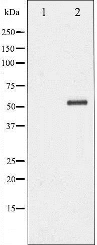Western blot - Anti-Chk2 (phospho T68) antibody (ab195929)