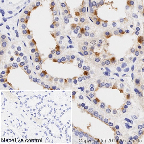 Immunohistochemistry (Formalin/PFA-fixed paraffin-embedded sections) - Anti-MUC1 antibody [EPR1023] (HRP) (ab195936)