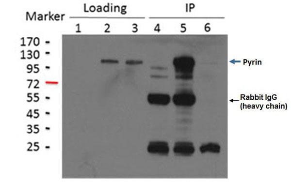 Immunoprecipitation - Anti-Pyrin antibody [EPR18676] (ab195975)