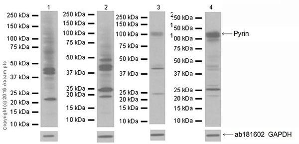 Western blot - Anti-Pyrin antibody [EPR18676] (ab195975)