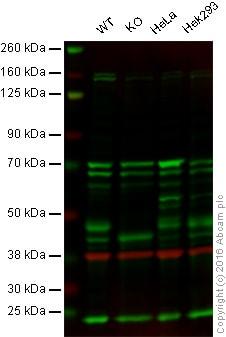 Western blot - Anti-ILKAP antibody [EPR16145] (ab196013)