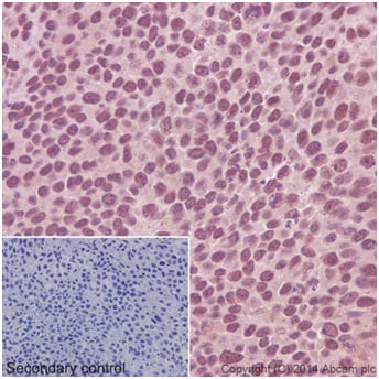 Immunohistochemistry (Formalin/PFA-fixed paraffin-embedded sections) - Anti-CTPS2 antibody [EPR16735] (ab196016)
