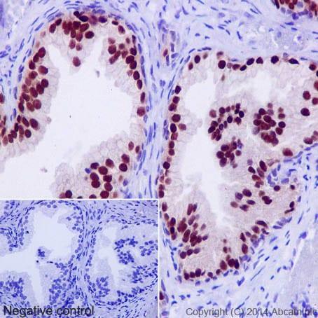 Immunohistochemistry (Formalin/PFA-fixed paraffin-embedded sections) - Anti-Nkx3.1 antibody [EPR16653] (ab196020)