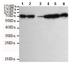 Western blot - Anti-DDX3 antibody [6G8-F4-E3] (ab196032)