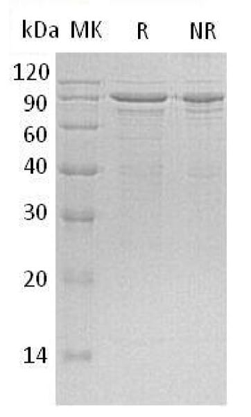 SDS-PAGE - Recombinant Human MeCP2 protein (His tag) (ab196070)