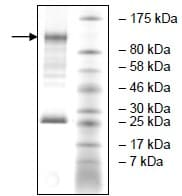SDS-PAGE - Recombinant human NEK9 protein (ab196083)