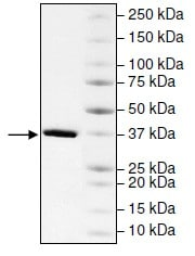 SDS-PAGE - Recombinant Human CECR2 protein (ab196137)