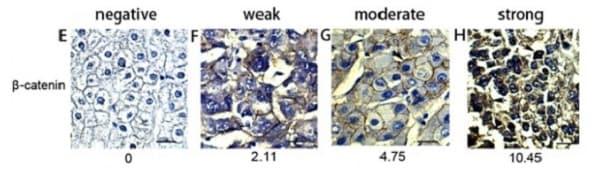 Immunohistochemistry (Formalin/PFA-fixed paraffin-embedded sections) - Anti-beta Catenin antibody [E247] - BSA and Azide free (ab196204)