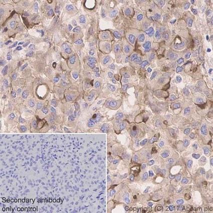 Immunohistochemistry (Formalin/PFA-fixed paraffin-embedded sections) - Anti-Mesothelin antibody [EPR19025-42] (ab196235)