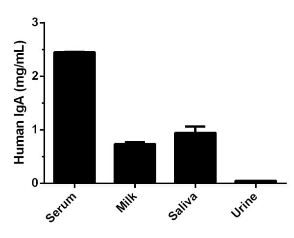 Comparison of IgA levels in Human serum, milk, saliva, and urine.