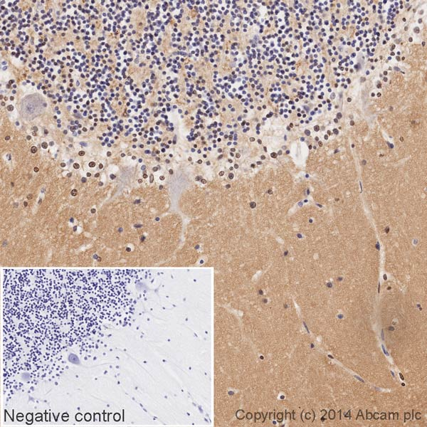 Immunohistochemistry (Formalin/PFA-fixed paraffin-embedded sections) - Anti-GAP43 antibody [EP890Y] (HRP) (ab196325)