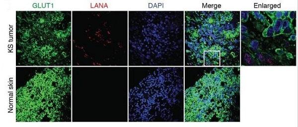 Immunohistochemistry (Formalin/PFA-fixed paraffin-embedded sections) - Anti-Glucose Transporter GLUT1 antibody [EPR3915] - Low endotoxin, Azide free (ab196357)