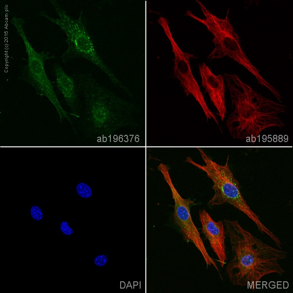 Immunocytochemistry/ Immunofluorescence - Anti-PDGFR beta antibody [Y92] (Alexa Fluor® 488) (ab196376)