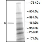 SDS-PAGE - Human PHF8 protein fragment (ab196430)