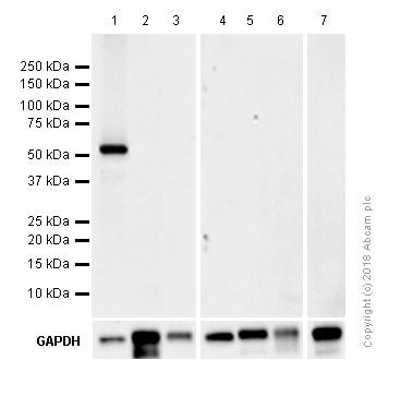 Western blot - Anti-MLKL (phospho S345) antibody [EPR9515(2)] (ab196436)