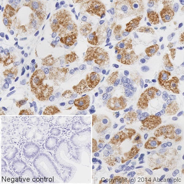 Immunohistochemistry (Formalin/PFA-fixed paraffin-embedded sections) - HRP Anti-STAT6 antibody [YE361] (ab196480)