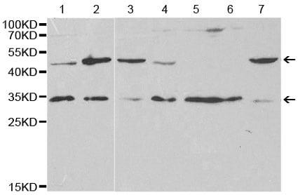 Western blot - Anti-VAPB antibody (ab196487)