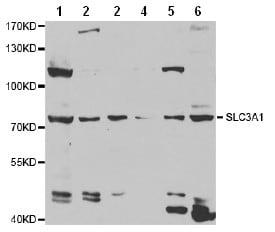 Western blot - Anti-SLC3A1 antibody (ab196552)