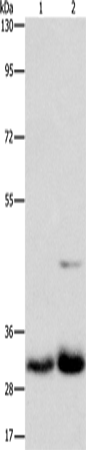 Western blot - Anti-MPG/AAG antibody (ab196553)