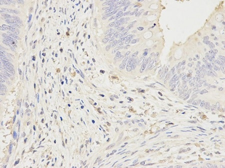Immunohistochemistry (Formalin/PFA-fixed paraffin-embedded sections) - Anti-CD64 antibody (ab196571)