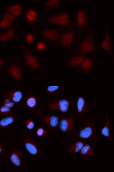 Immunocytochemistry/ Immunofluorescence - Anti-SH2B1/PSM antibody (ab196575)