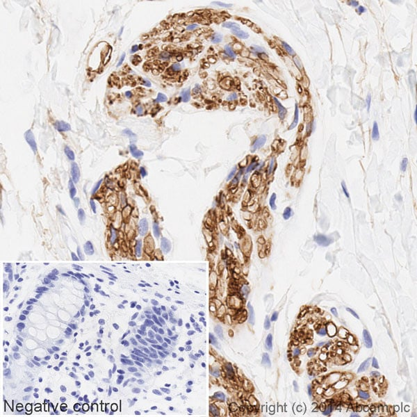 Immunohistochemistry (Formalin/PFA-fixed paraffin-embedded sections) - HRP Anti-Tubulin antibody [YOL1/34] - Microtubule Marker (ab196583)
