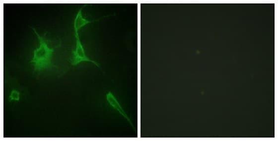 Immunocytochemistry/ Immunofluorescence - Anti-COL9A3 antibody (ab196591)