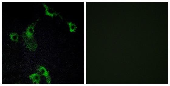 Immunocytochemistry/ Immunofluorescence - Anti-CIDE B antibody (ab196595)