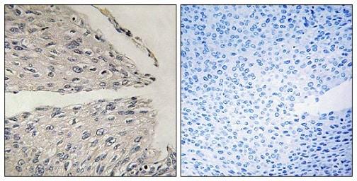 Immunohistochemistry (Formalin/PFA-fixed paraffin-embedded sections) - Anti-CIDE B antibody (ab196595)