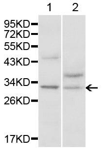 Western blot - Anti-MTAP antibody (ab196597)