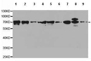 Western blot - Anti-Leukotriene A4 hydrolase/LTA4H antibody (ab196607)