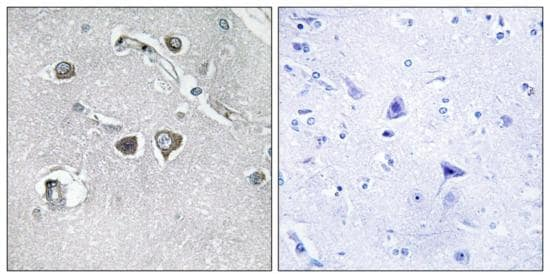 Immunohistochemistry (Formalin/PFA-fixed paraffin-embedded sections) - Anti-Collagen XI alpha 2/COL11A2 antibody (ab196613)