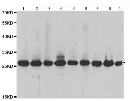 Western blot - Anti-Triosephosphate isomerase antibody (ab196618)