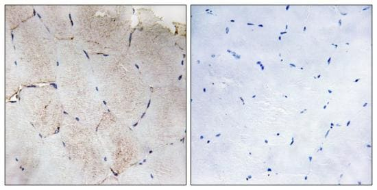 Immunohistochemistry (Formalin/PFA-fixed paraffin-embedded sections) - Anti-COL12A1 antibody (ab196619)