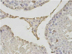 Immunohistochemistry (Formalin/PFA-fixed paraffin-embedded sections) - Anti-PSMB1 antibody (ab196623)
