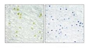 Immunohistochemistry (Formalin/PFA-fixed paraffin-embedded sections) - Anti-CRSP2 / MED14 antibody (ab196624)
