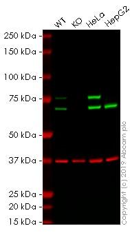Western blot - Anti-Lamin A + Lamin C antibody [JOL2] (HRP) (ab196636)