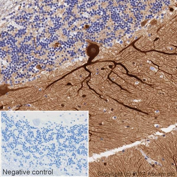 Immunohistochemistry (Formalin/PFA-fixed paraffin-embedded sections) - Anti-beta III Tubulin antibody [2G10] (HRP) (ab196638)