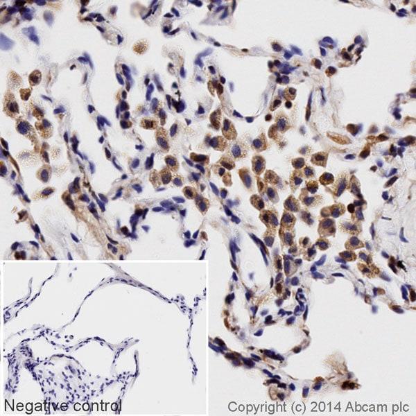 Immunohistochemistry (Formalin/PFA-fixed paraffin-embedded sections) - HRP Anti-MIF antibody [EPR12463] (ab196645)