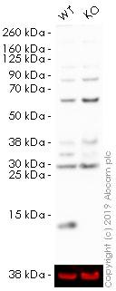 Western blot - HRP Anti-MIF antibody [EPR12463] (ab196645)