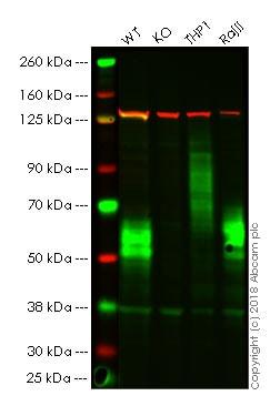 Western blot - Anti-CD58 antibody [EP15041] (ab196648)