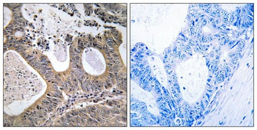 Immunohistochemistry (Formalin/PFA-fixed paraffin-embedded sections) - Anti-STEAP2 antibody (ab196661)